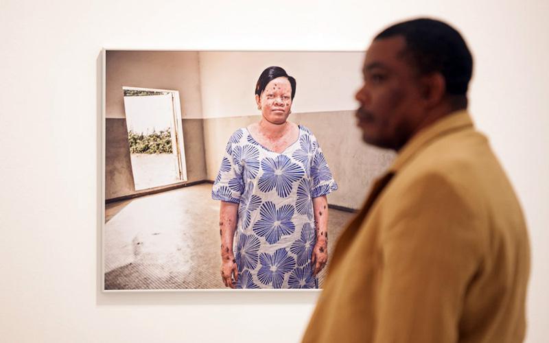 Casa África muestra la realidad de la vida de los albinos en Senegal con una exposición fotográfica